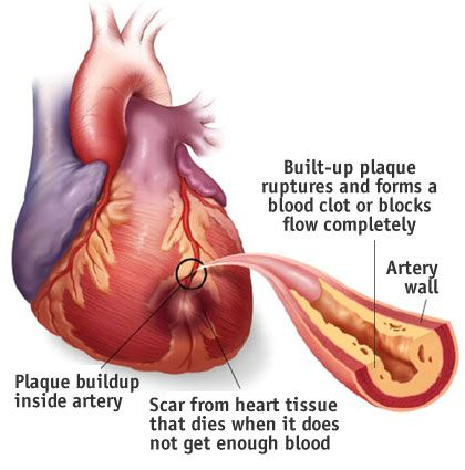 45 best Heart Disease images on Pinterest | Heart disease, Health ...