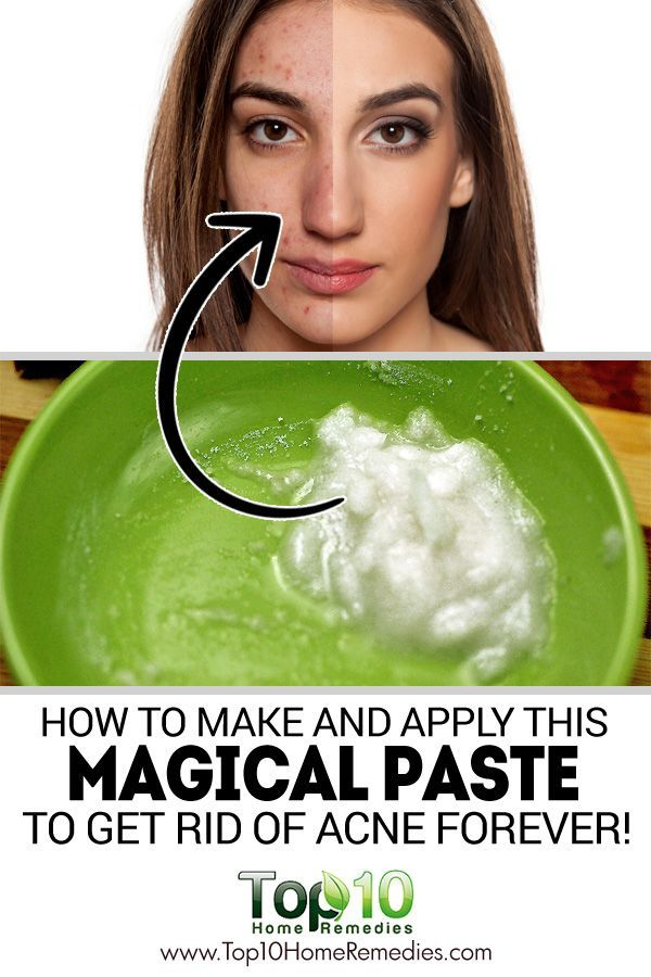 How to Make and Apply this Magical Paste to Get Rid of Acne Forever!
