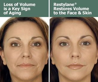 Restylane, a natural cosmetic dermal filler that restores fullness to the skin to correct wrinkles and folds in the face.  Before and After photos ...