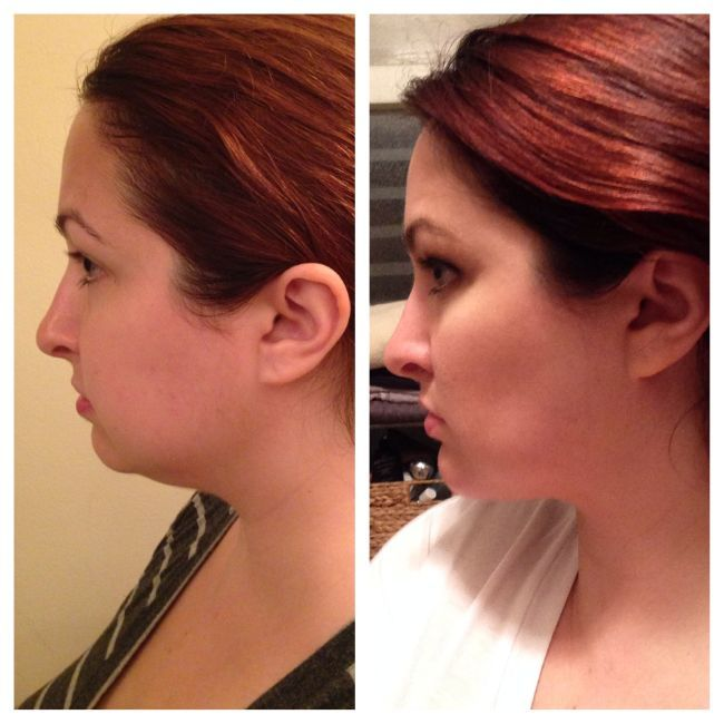 """Why I Decided to Get Plastic Surgery -- """"fat removed from my neck, buccal fat pads removed from my cheeks and a chin implant added"""""""