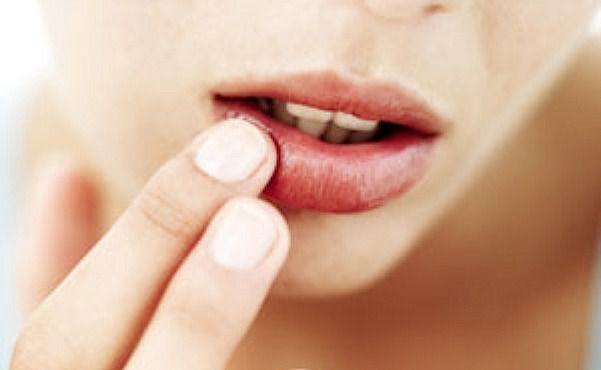 Labbra screpolate, come curarle
