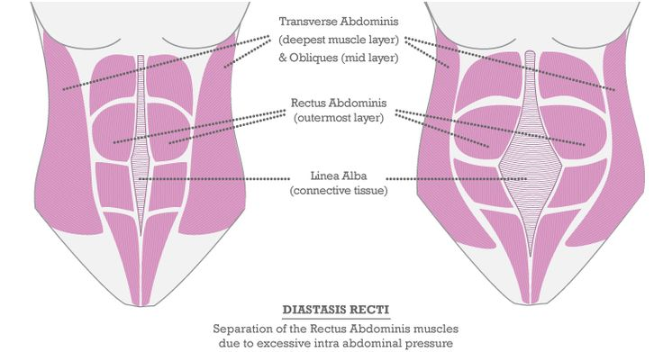 Exercises to correct Diastases Recti after Pregnancy