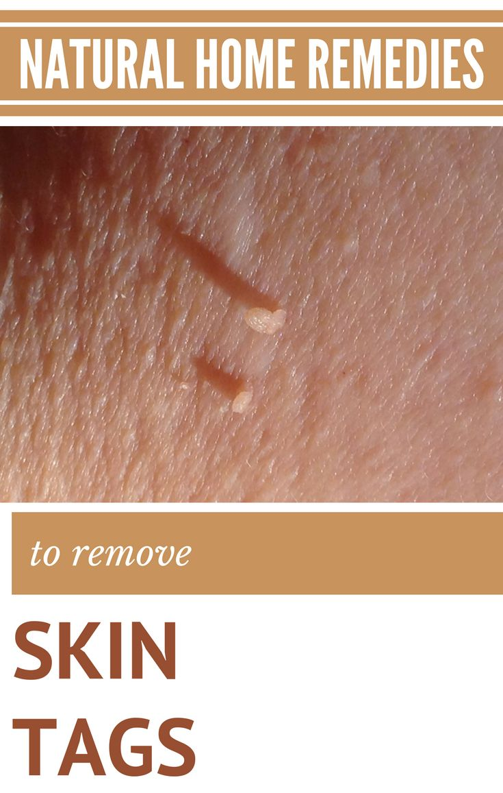 how to get rid of milia home remedies