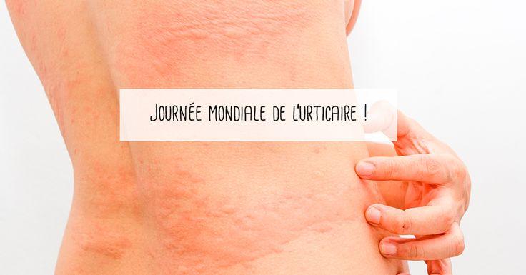 L'urticaire correspond en général à une allergie qui se manifeste par des éruptions au niveau de la peau