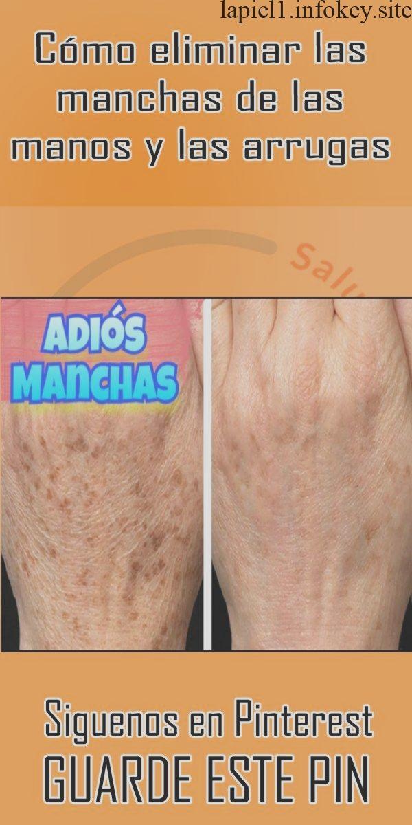 Cómo eliminar las manchas de las manos y las arrugas | Tips