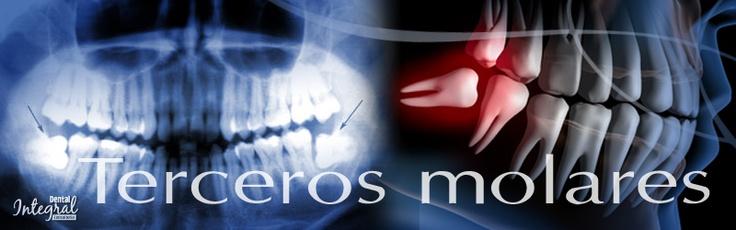 Terceros molares  También llamadas muelas del juicio, son los últimos dientes en erupcionar en la boca. Estas cuatro muelas no siempre tienen espacio, pues en ocasiones son muy grandes para un lugar reducido o están orientadas en mala dirección, por lo que al intentar erupcionar pueden mover otros dientes.  El tratamiento generalmente es la cirugía de los terceros molares.   Más información: http://www.dentalintegralconsultorio.com/terceros.html