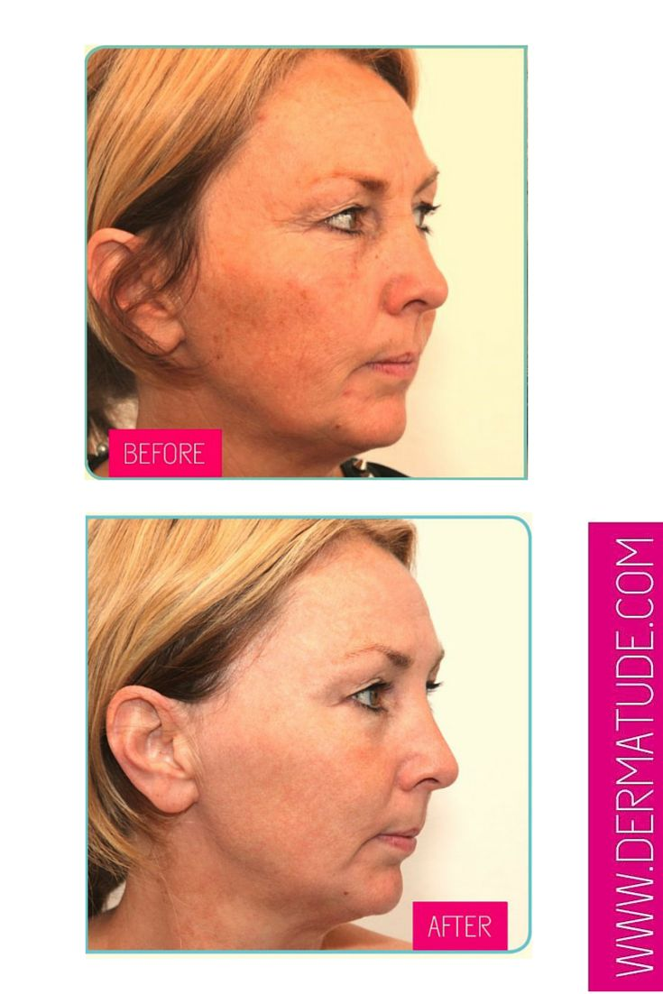 #Dermatude Before and After Facial-Right