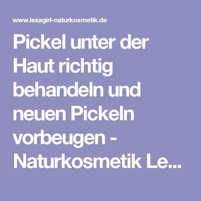 Pickel unter der Haut richtig behandeln und neuen Pickeln vorbeugen - Naturkosmetik Lexagirl