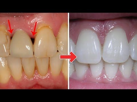3 Ridiculously easy ways to Treat gum disease at home