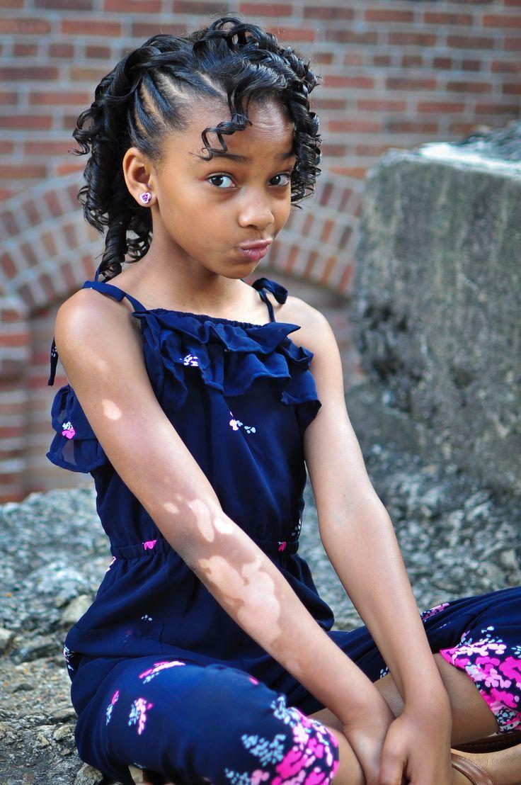 "Check out my blog on Vitiligo, ""It's Not a Burn"" | Xaria Lovs Fashion | Kids Fashion Blog | Vitiligo | #vitiligobeauty"