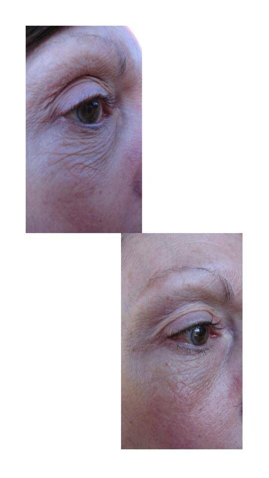 Janet's result on using Uth for just one month! Imagine after 6 months! This product is amazing!