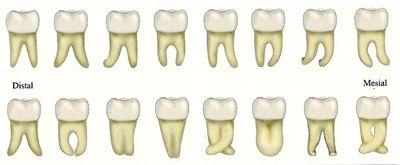 Las raíces de los terceros molares pueden ser muy diversas.