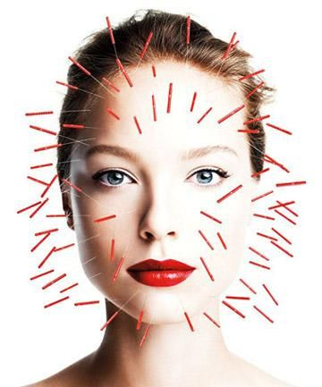 Beauty Benefits of Acupuncture, from acne to weight loss