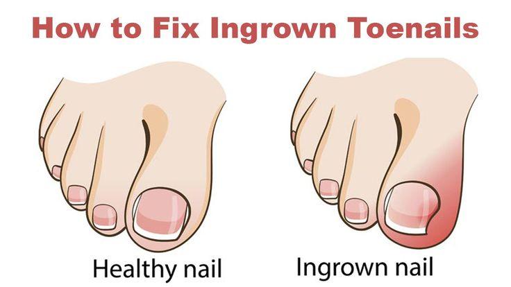 Que medio es eficaz del hongo de las uñas en los pies
