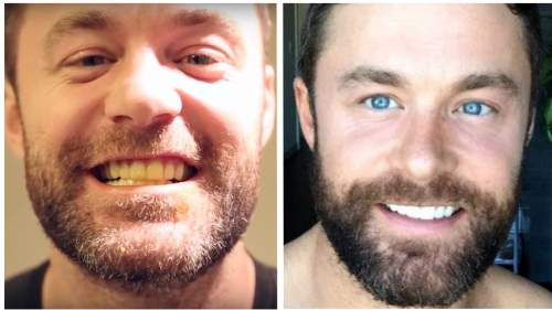See How He Whitens His Teeth With THIS Natural Ingredient Everyone wants whiter, brighter, healthier teeth, right? Sometimes plain old toothpaste doesn't