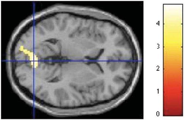 DIVERSOS ESTUDIOS DEMUESTRAN QUE LA MORFOLOGÍA DE NUESTROS HOGARES NOS ENFERMA: El Dr. Oshin Vartanian demostró que las formas angulares estimulan la amígdala en la parte de gestión del miedo (generándonos miedo y mala energía); lo ideal para el ser humano son las líneas curvas que estimulan el córtex cíngulo anterior, que gestiona la empatía y las emociones.