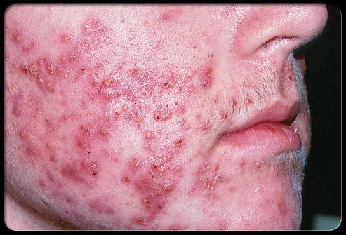 Cystic acne affects deeper skin tissue than common acne.