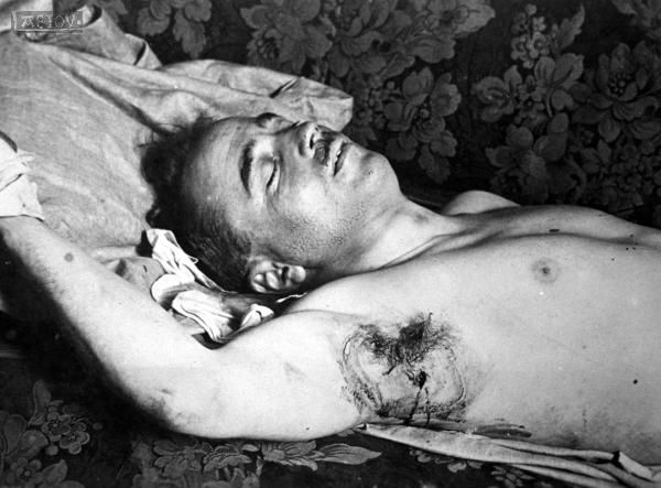 Dollfuss, lay in agony for seven hours, during which time the Nazis refused to bring him either a doctor or a priest. The chancellor who spared not even his own life in the combat against the evil rampant in Europe breathed his last praying God to his. The news reached Mussolini at Cesena, where he was examining the plans for a psychiatric hospitaland he mobilized a part of the Italian army on the Austrian border and threatened Hitler with war in the event of a German invasion of Austria