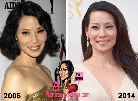 Lucy Liu Plastic Surgery Before Amp After Http