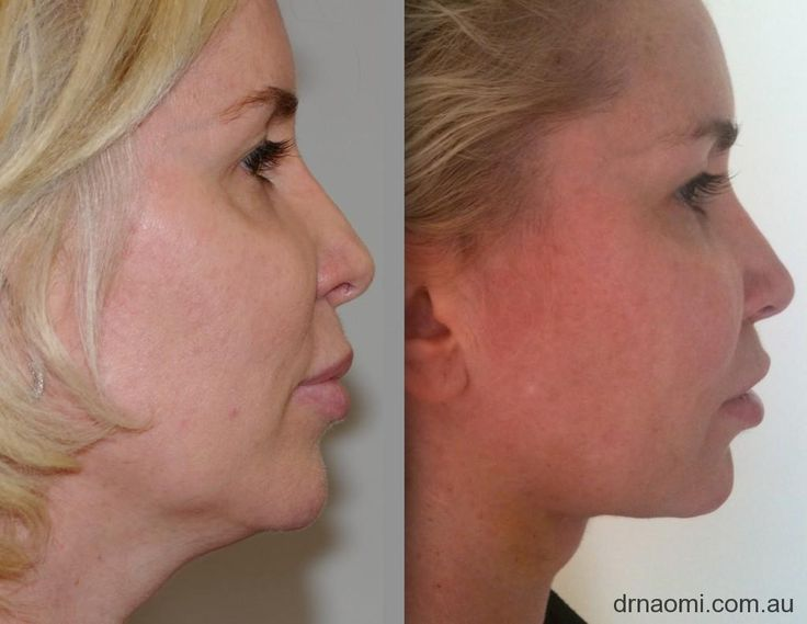 I HATE THIS BEFORE PHOTO! Before and 4 days after neck liposuction