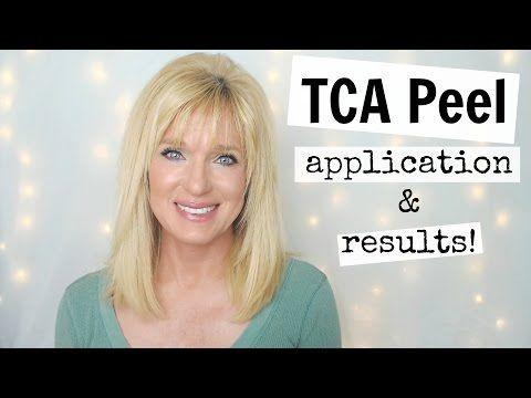 TCA Peel For Sun Damage & Anti-Aging! Collab With Jenifer Jenkins! - YouTube