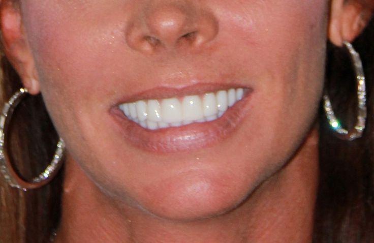 Smile Designs by Golpa - Golpa Dental Implant Center ...