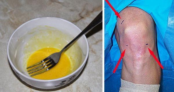 articulatiile se vindeca cu oua