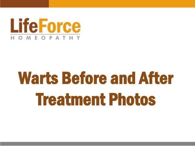 Here is a collection of before and after treatment photos of warts patients, you'll find photos of cases with warts on face, eyes, hands and legs.