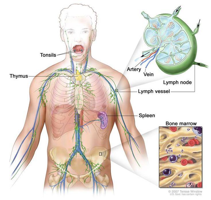Image result for Lymphoma informative images