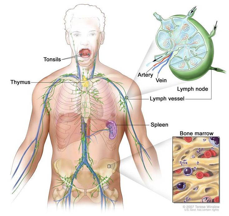 General Information About Adult Non-Hodgkin Lymphoma