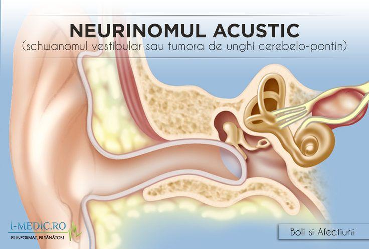 Neurinomul acustic este o afectiune benigna rara, cunoscuta si sub denumirea de schwanom vestibular. Tumora se dezvolta lent la nivelul nervului vestibulo-cohlear, care asigura controlul auzului si echilibrului. Formarea tumorii poate afecta atat auzul, cat si echilibrul. http://www.i-medic.ro/boli/neurinomul-acustic-schwanomul-vestibular-sau-tumora-de-unghi-cerebelo-pontin