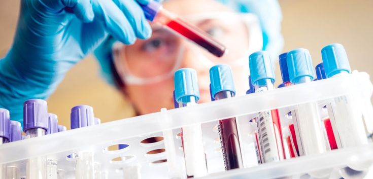 People at High Risk for Lupus Can Be Identified Through Blood Test
