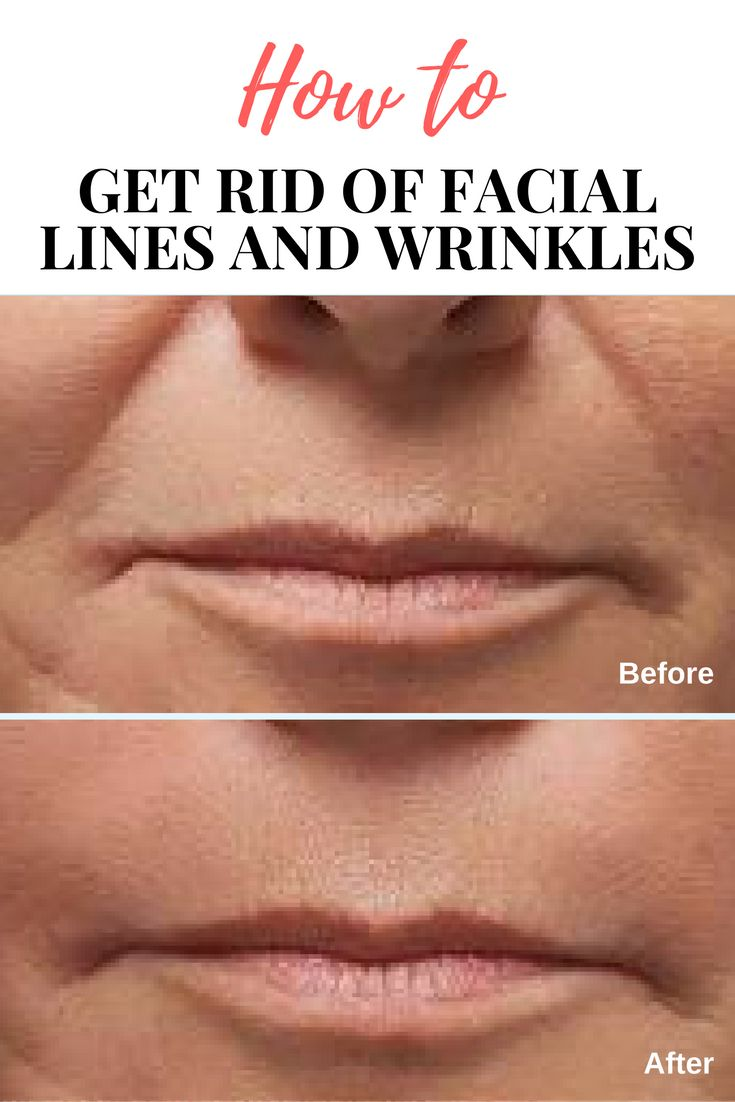 Attractive Facial Features - The Elements of a Perfect Face