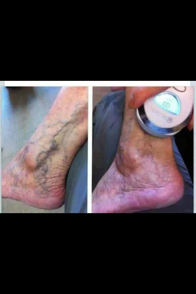 Images about nu skin on pinterest galvanic spa body spa and nu skin