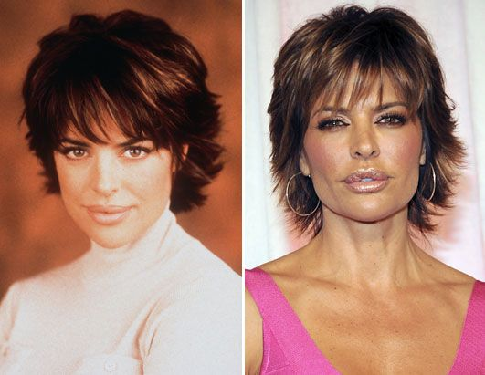 Lisa Rinna Before After | http://a.abcnews.com/images/GMA/abc_lisa_rinna_090107_ssh.jpg