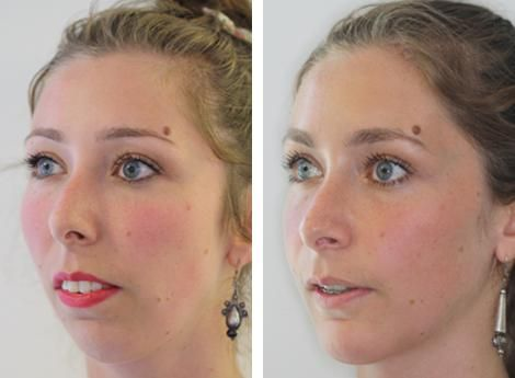 Before and After Jaw Surgery   Shaping Faces London