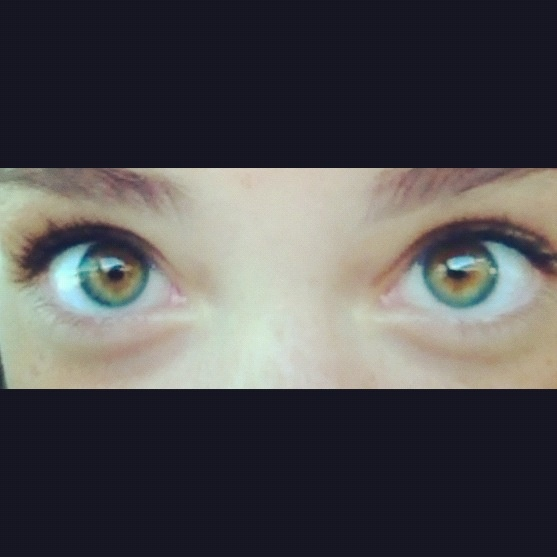 Central Heterochromia Iridum Heterochromia Pinterest