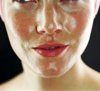 Info kecantikan : masalah kulit wajah berminyak Make Up, Pelembab Kulit dan jenis kulit berminyak Pilih dengan bijak dan cermat produk untuk kulit berminyak dan berjerawat, karena hal ini dapat menyebabkan beberapa masalah. Demikian juga dengan pelembab, Anda harus bijaksana dan cerdas dalam mengambil keputusan .