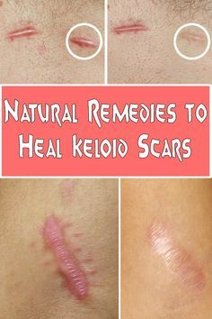 Natural Remedies to Heal Keloid Scars ==