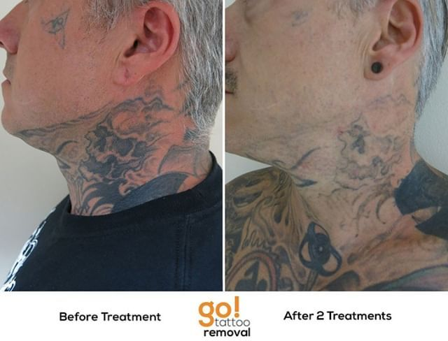 Making Really Nice Progress Removing This Full Neck Piece For A Client Shown Here Is The Left Side O Laser Tattoo Removal Tattoo Removal Realistic Expectations