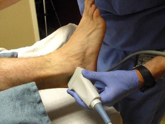 Ecografía Articular de Cadera, rodilla, tobillo y pie. http://goo.gl/84rW3a Las imágenes de ultrasonido usan ondas sonoras para producir imágenes de los músculos, los tendones, los ligamentos y las articulaciones de todo el cuerpo. Se utiliza para ayudar a diagnosticar torceduras, esguinces, roturas y otras afecciones de los tejidos blandos. El ultrasonido es seguro, no es invasivo y no utiliza radiación ionizante.