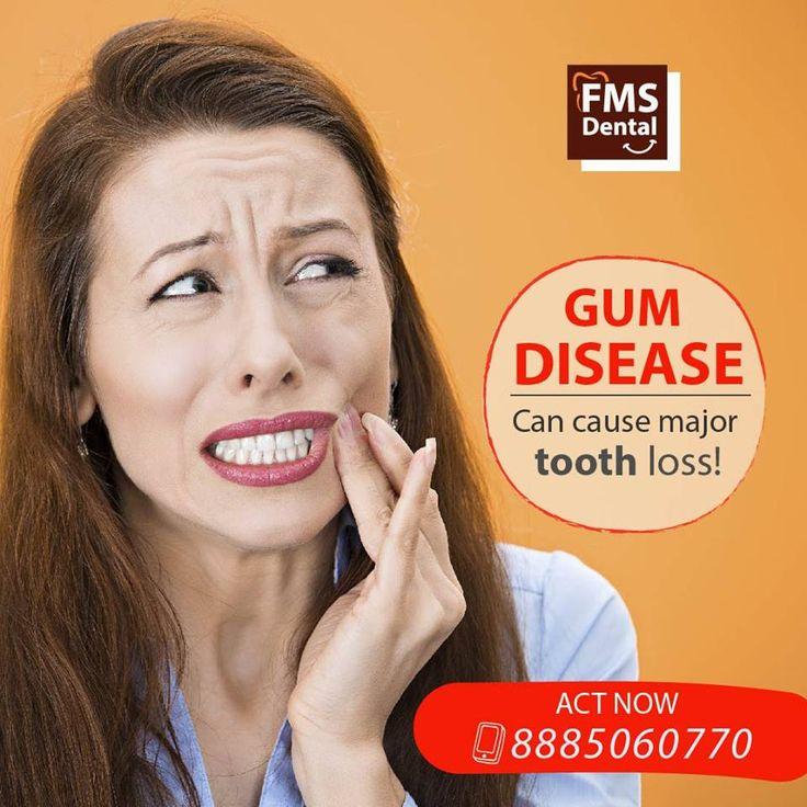 Best Implant Dentist Near Me: FMS Dental Hospital Is Best Dental Clinic In Hyderabad
