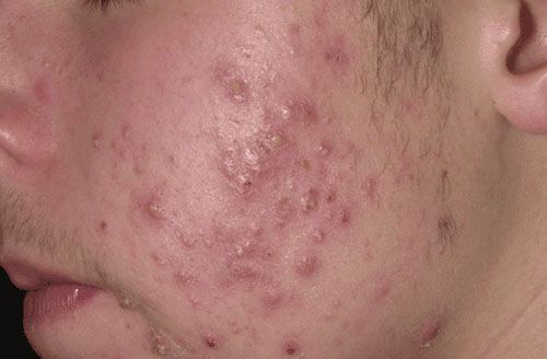 How To Treat Hives The Natural Way
