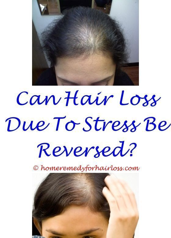 11 best The Facts Of Hair Loss images on Pinterest
