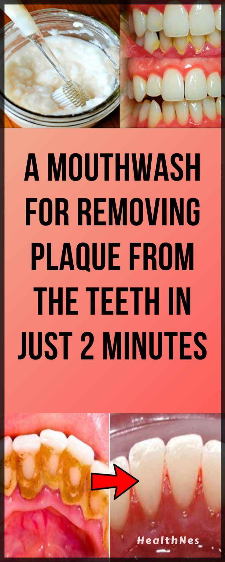 Ein Mundwasser zum Entfernen von Plaque von den Zähnen in nur 2 Minuten    – Dental Health