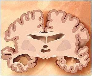 Cognitive Decline Early Identified With The Help of New Brain-imaging Tool