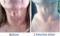 how to get rid of crepey skin on neck