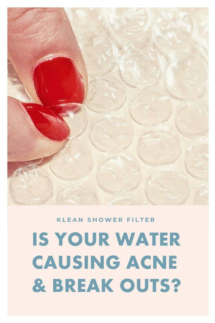 Amazing Details On Acne Behandelen