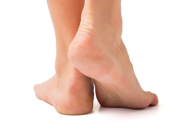 Trockene Füße mit viel Hornhaut sind nicht besonders hübsch anzusehen. Außerdem können Sie mit der Zeit empfindlich werden und schmerzen.