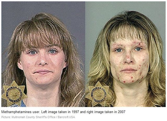 Methamphetamine. Before and After | Medicine | Pinterest